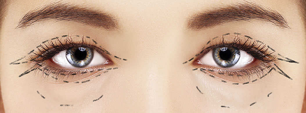 eyelid surgery in austin tx